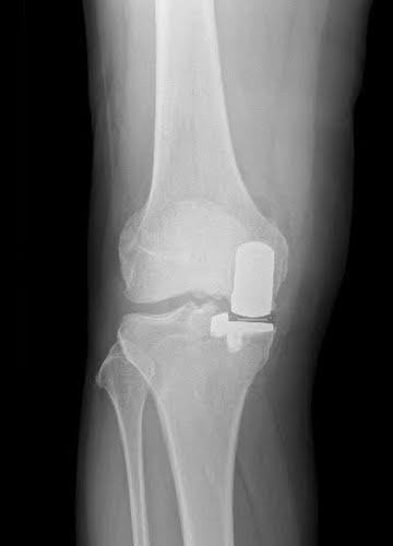 Partial-Knee-Replacement-After-Image